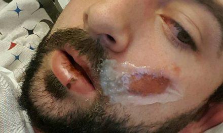 Le explota un cigarrillo electrónico en la boca