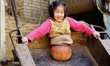 Esta niña perdió sus piernas y aprendió a andar con una pelota
