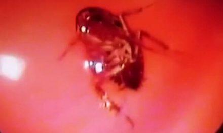 Sacan una cucaracha del cerebro de una mujer que sentía hormigueos