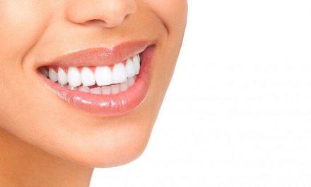 Tips para blanquear los dientes de forma natural