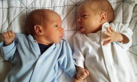 Estos gemelos salvan su vida por estar cogidos de la mano en el útero